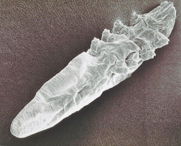 Demodex-mite-scanning-electron-microscope-image-2_Alan R Walker