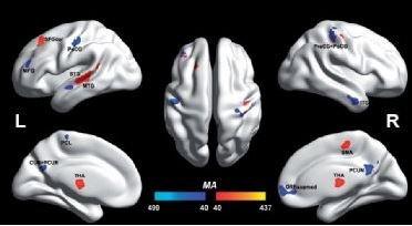 Regiões do cérebro significativamente diferentes nos dois grupos de indivíduos - Chen et al. (2015) Brain