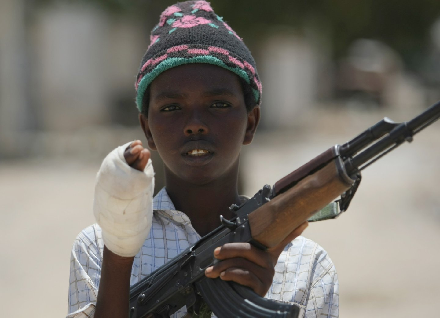 """A young fighter from the Al-Shabab militia shows the wound in his hand which he suffered while battling Somali government forces in a frontline section in Sinaya Neighborhood in Mogadishu, on July 13, 2009. According to the Islamist militants, Al-Shabab fighters and Hizbul Islam fighters regained some of their position overnight which they had lost to the government soldiers over the weekend. Paramedics, police and government forces said the fighting Sunday spread across several districts of the city and claimed many lives. """"The ambulances collected 75 injured civilians and 14 dead bodies of civilians,"""" Ali Muse, the head of the city's ambulance service, told AFP. """"Some of them were killed by mortar and artillery shells and others by crossfire."""" AFP PHOTO/Mohamed DAHIR (Photo credit should read MOHAMED DAHIR/AFP/GettyImages)"""