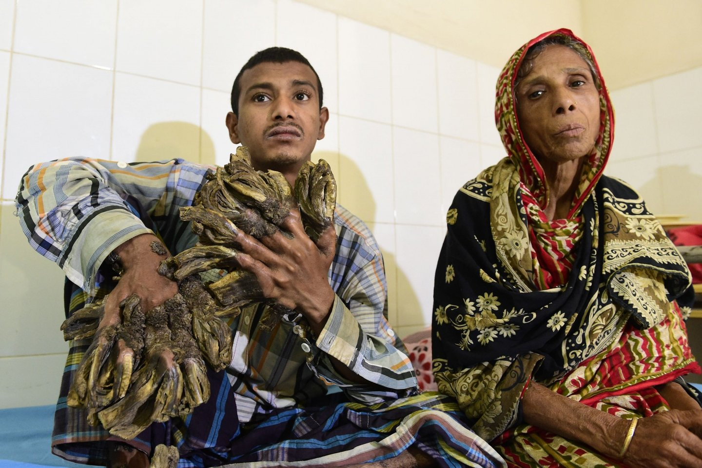 """Abul Bajandar (L), 26, dubbed """"Tree Man"""" for massive bark-like warts on his hands and feet, sits at Dhaka Medical College Hospital in Dhaka on January 31, 2016. A Bangladeshi autodriver dubbed """"Tree Man"""" for massive bark-like warts on his hands and feet will finally have surgery to remove the growths that first appeared 10 years ago, a hospital said on January 31, 2016. The massive warts, which first started appearing when he was a teenager but began spreading rapidly four years ago, have been diagnosed as epidermodysplasia verruciformis, an extremely rare genetic skin disease that makes the person vulnerable to warts. AFP Photo/ Munir uz ZAMAN / AFP / MUNIR UZ ZAMAN (Photo credit should read MUNIR UZ ZAMAN/AFP/Getty Images)"""