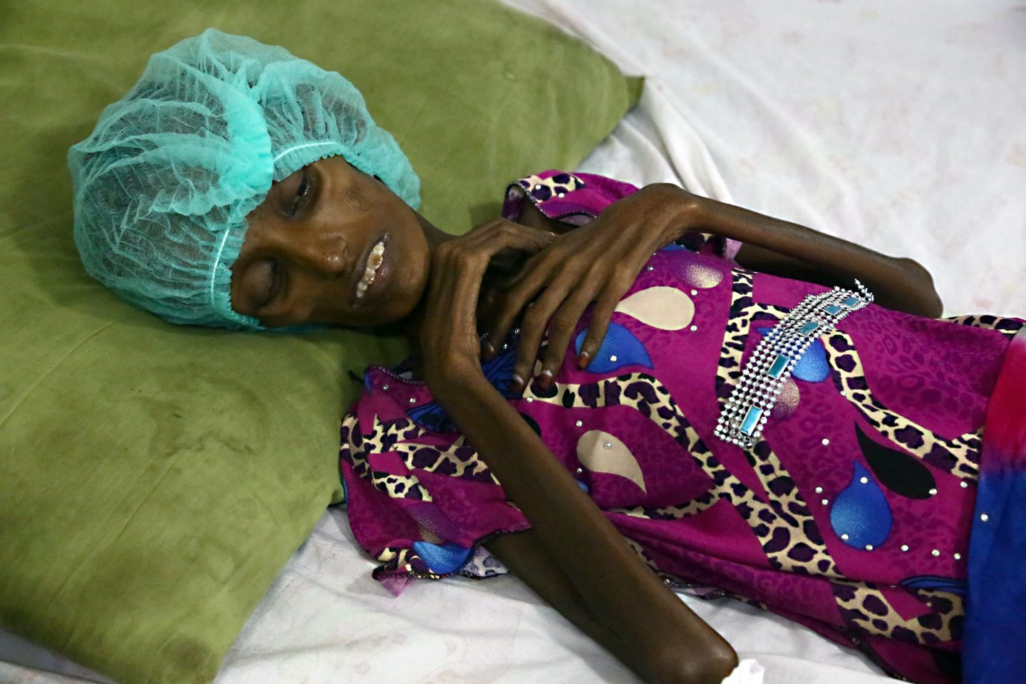Saida Ahmad Baghili, an 18-year-old Yemeni woman from an impoverished coastal village on the outskirts of the rebel-held Yemeni port city of Hodeida, where malnutrition has hit the population hard, lies in a bed at the al-Thawra hospital in Hodeidah where she is receiving treatment for severe malnutrition on October 25, 2016. The UN's children agency UNICEF estimates that three million people are in need of immediate food supplies in Yemen, while 1.5 million children suffer from malnutrition. / AFP / STRINGER (Photo credit should read STRINGER/AFP/Getty Images)