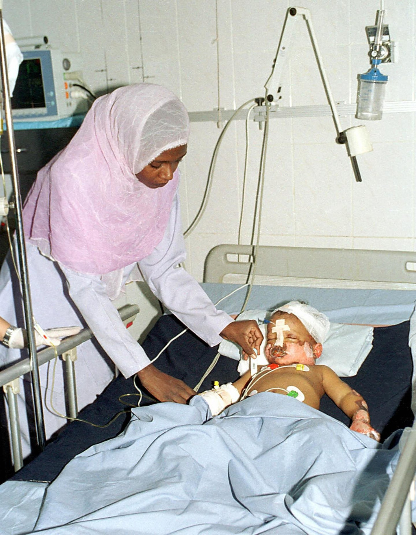 Three-year-old Sudanese boy Mohammed al-Fateh, the sole survivor of a Sudan Airways plane crash near the eastern city of Port Sudan, is treated at a Khartoum hospital 09 July 2003. Doctors were mystified as to how the boy, who was burned and lost part of a leg, had survived the previous day's crash near Sudan's Red Sea coast, speculating that he was thrown clear of the plane on a piece of wreckage and may have landed on a bush. The Sudan Airways Boeing 737 was destroyed in a ball of fire as it attempted to land back at Port Sudan after apparently suffering an engine problem soon after takeoff. (Film) AFP PHOTO/Salah OMAR (Photo credit should read SALAH OMAR/AFP/Getty Images)