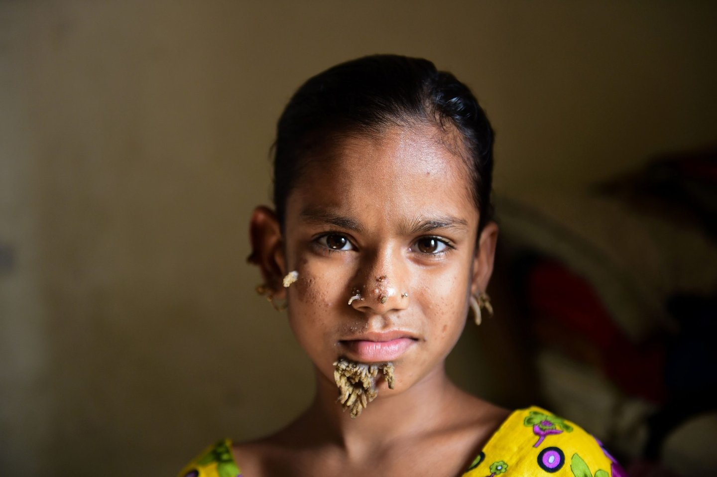 """TOPSHOT - In this photograph taken on January 30, 2017, Bangladeshi patient Sahana Khatun, 10, poses for a photograph at the Dhaka Medical College and Hospital. A young Bangladeshi girl with bark-like warts growing on her face could be the first female ever afflicted by so-called """"tree man syndrome"""", doctors studying the rare condition said January 31. Ten-year-old Sahana Khatun has the tell-tale gnarled growths sprouting from her chin, ear and nose, but doctors at Dhaka's Medical College Hospital are still conducting tests to establish if she has the unusual skin disorder. / AFP / STR (Photo credit should read STR/AFP/Getty Images)"""